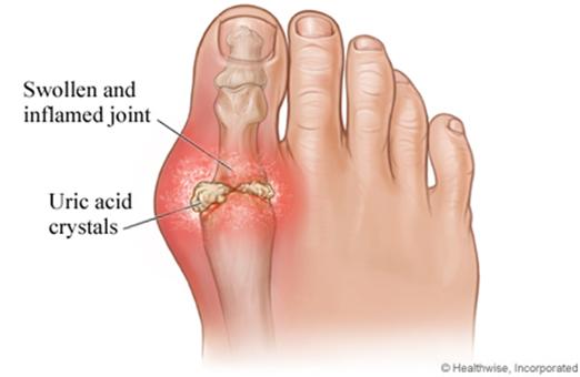 gouty toe